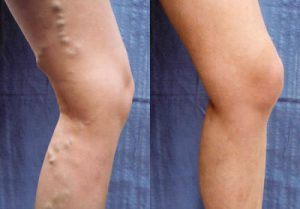 What is the leg pain? Treatment, symptoms, signs and